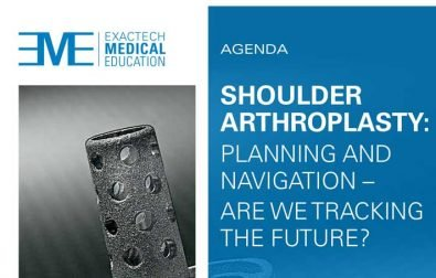 congresso-shoulder-arthroplasty-planning-and-navigation-are-we-tracking-the-future